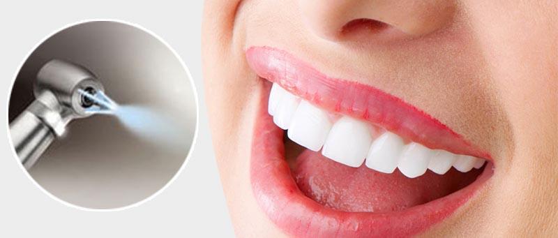 стоимость чистки зубов