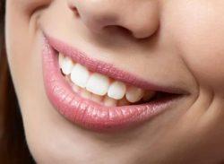цена на эстетическую реставрацию зубов
