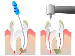 цены на лечение каналов зуба