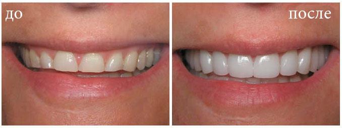 реставрация зубов в Минске