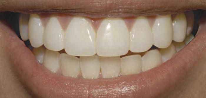 Зубы из оксида циркония
