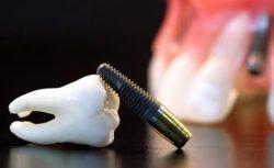 импланты на зубы