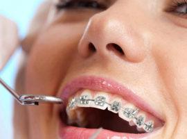 Ортодонтия в Минске